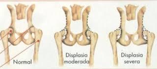 displasia-coxofemoral-graus